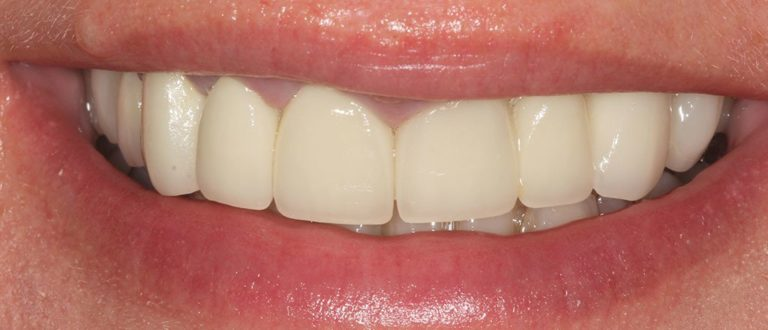 dental smile makeover in south london