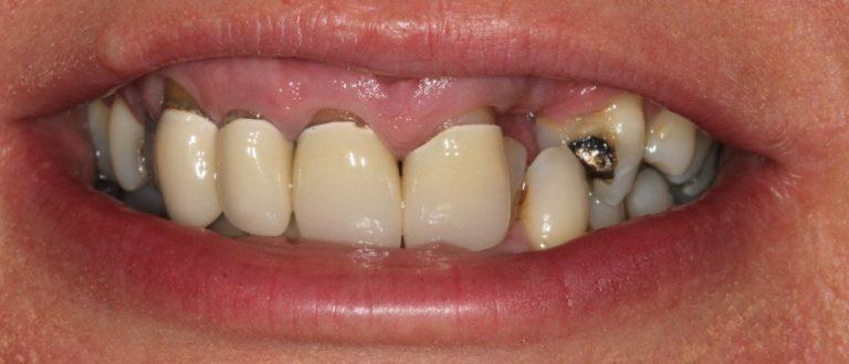 dulwich dentist smile makeover