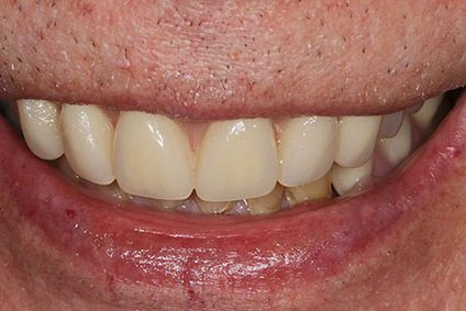 John after smile makeover at Dental Beauty Dulwich in south london