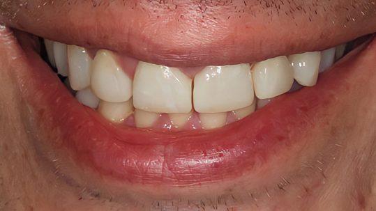 todd composite bonding london dentist