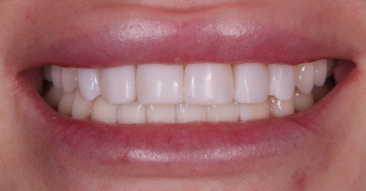 dental beauty cosmetic bonding treatment after