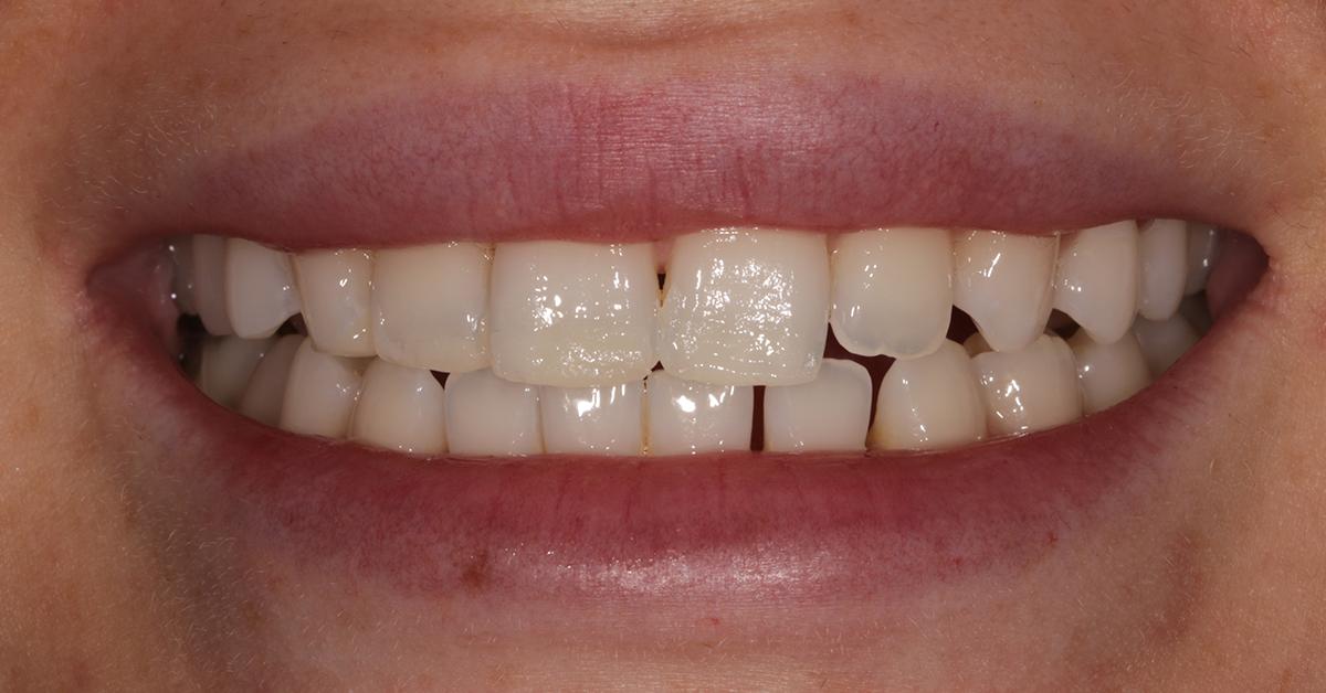 dental beauty cosmetic bonding treatment before