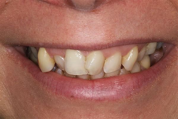 teeth-straightening-london dentistjpg